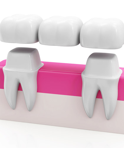 Dental- Crown