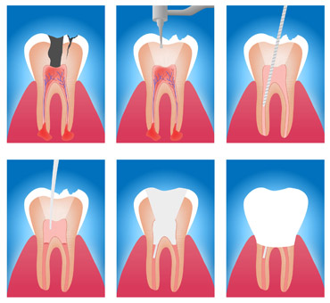 Root-Canal-Treatment-1